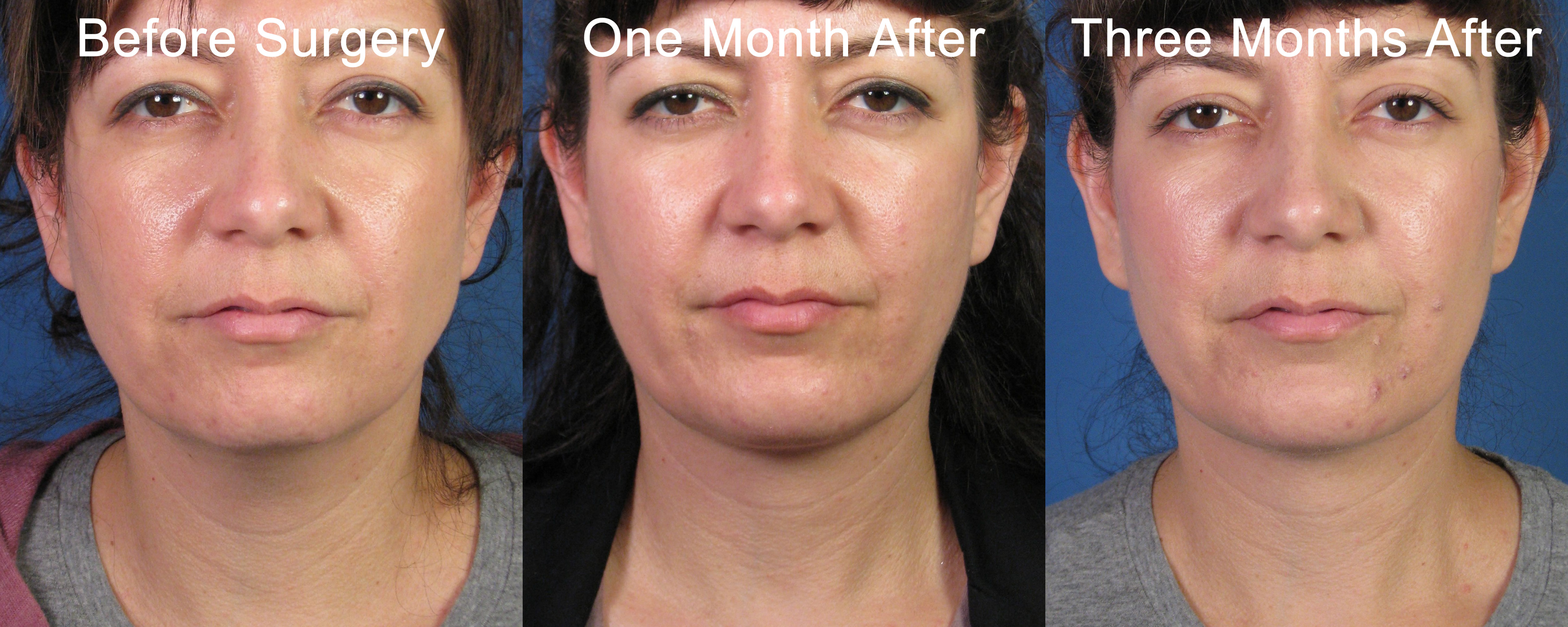 Cervical Liposuction And Neck Lipocontouring With Chin Implant