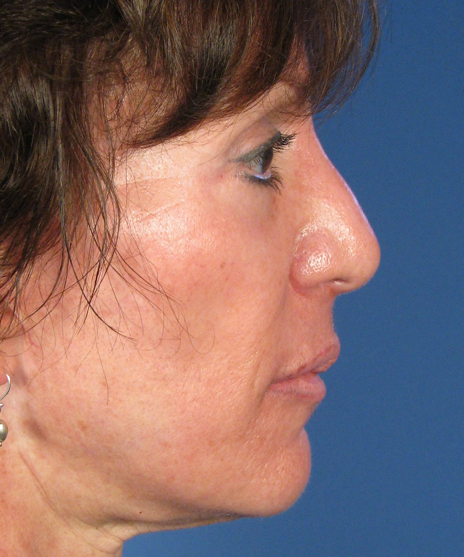 Steroid Injections For Thick Skin In Revision Rhinoplasty