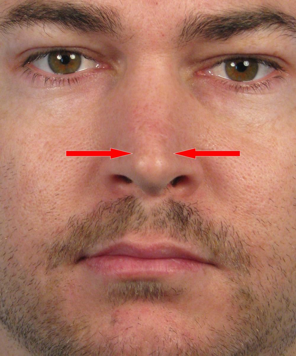Widening The Nasal Tip In Rhinoplasty  Nose Reshaping