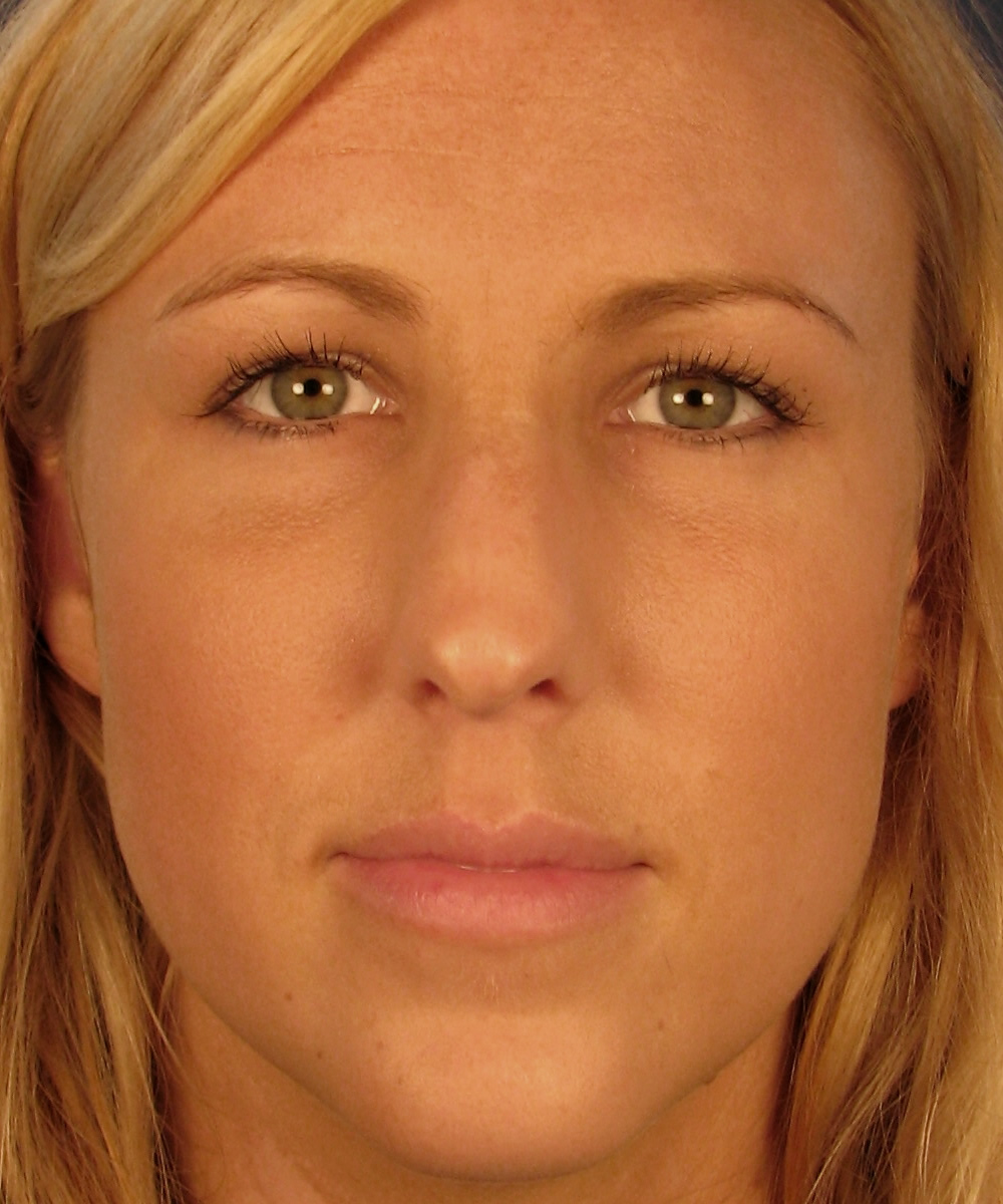 how to take care of nasal tip lift