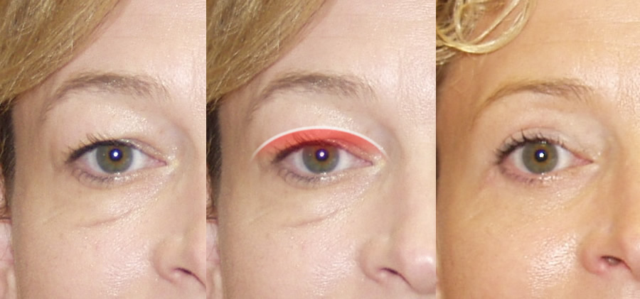 hollow eyes surgery