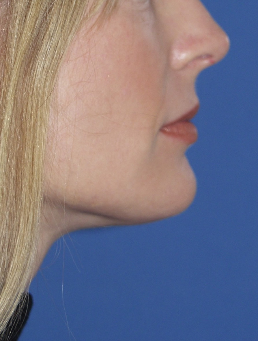 Neck Liposuction Versu...