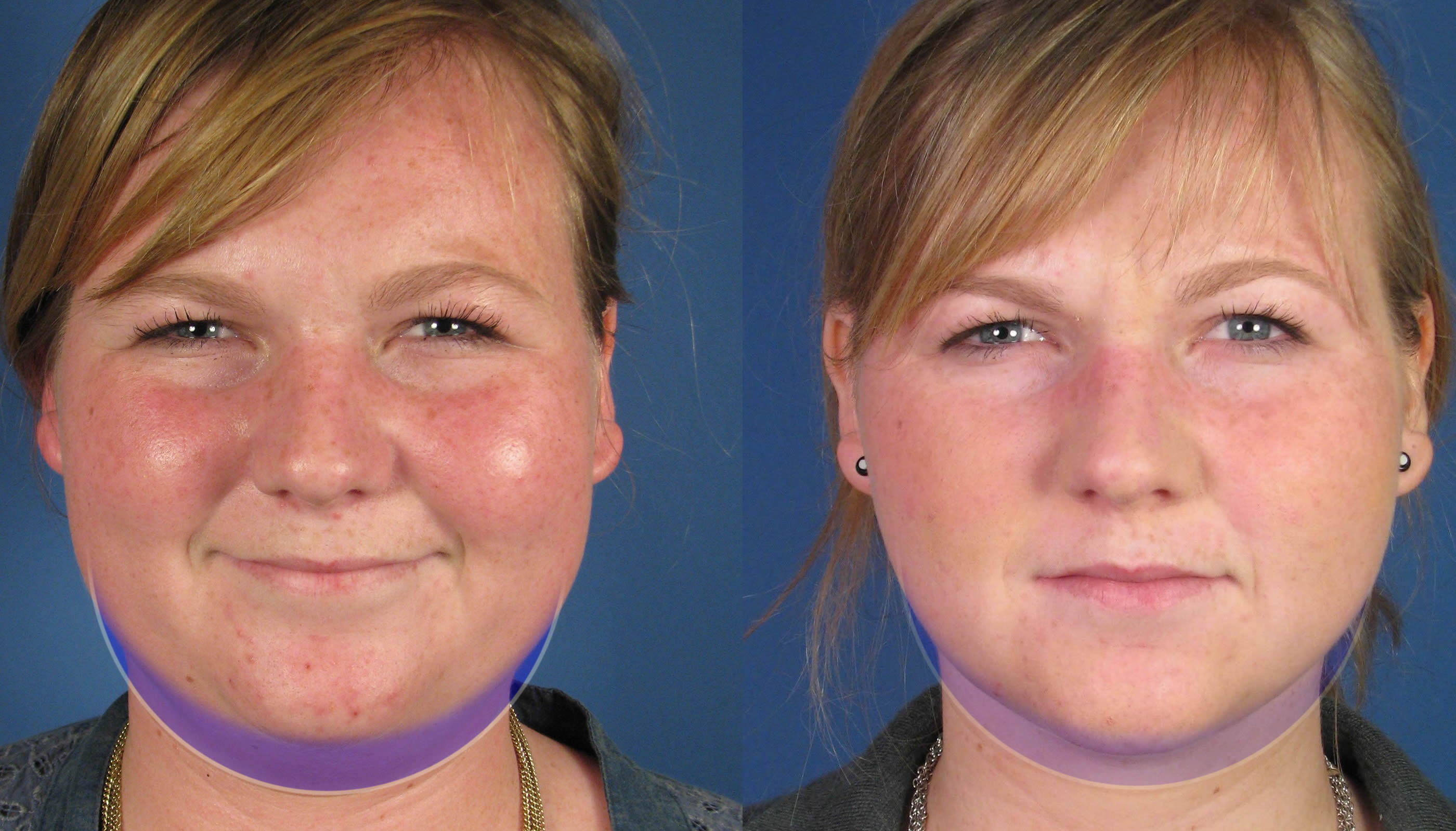Update On Necklift With Platysmaplasty  U0026 Neck Liposuction