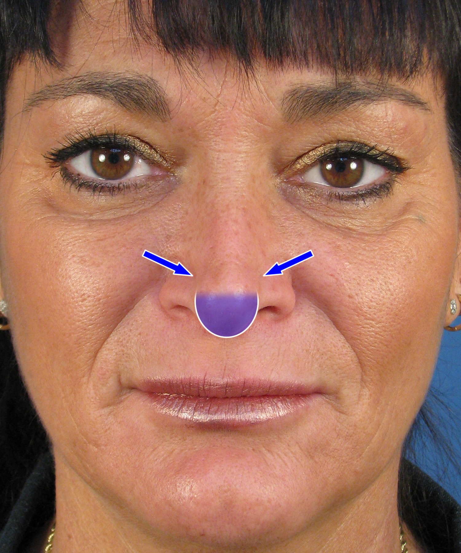 Pinched Nasal Tip & Hanging Columella In Revision Rhinoplasty