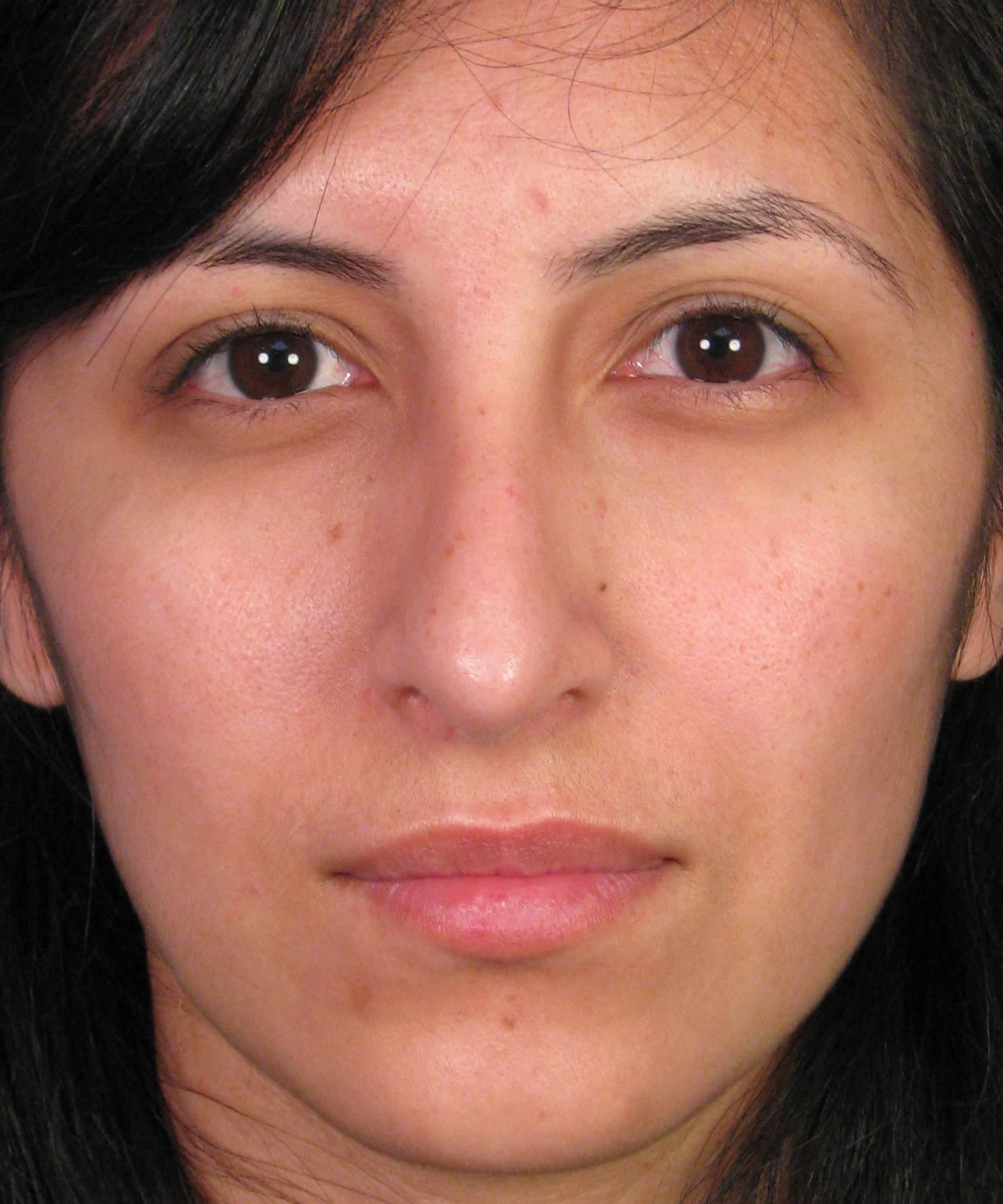 Rhinoplasty Correction – Crooked Nose Deformity