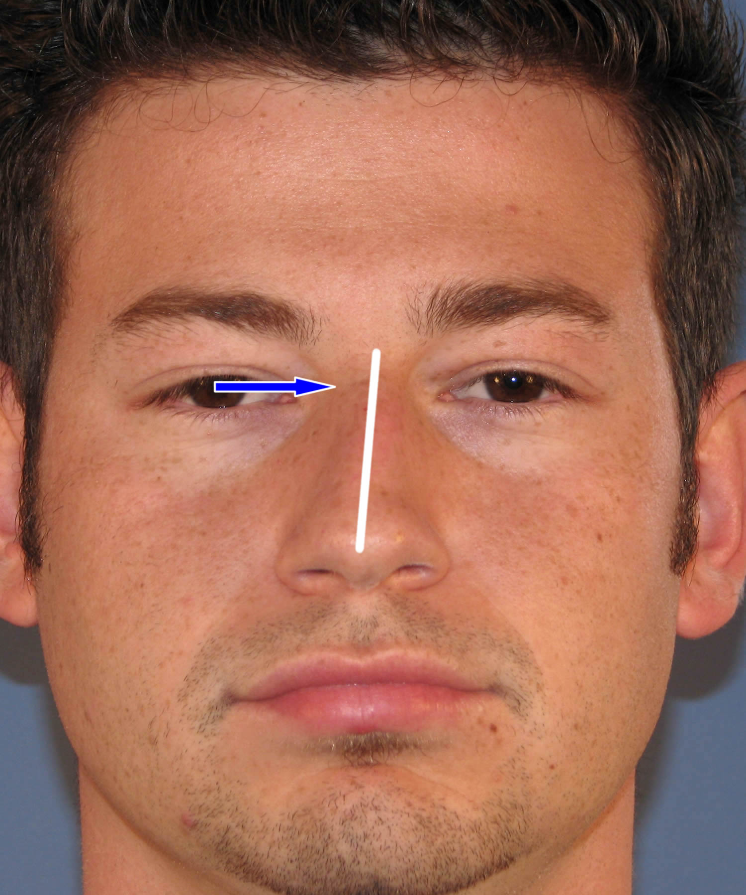 Rhinoplasty For Moderately Complex Asymmetry Of The Nose