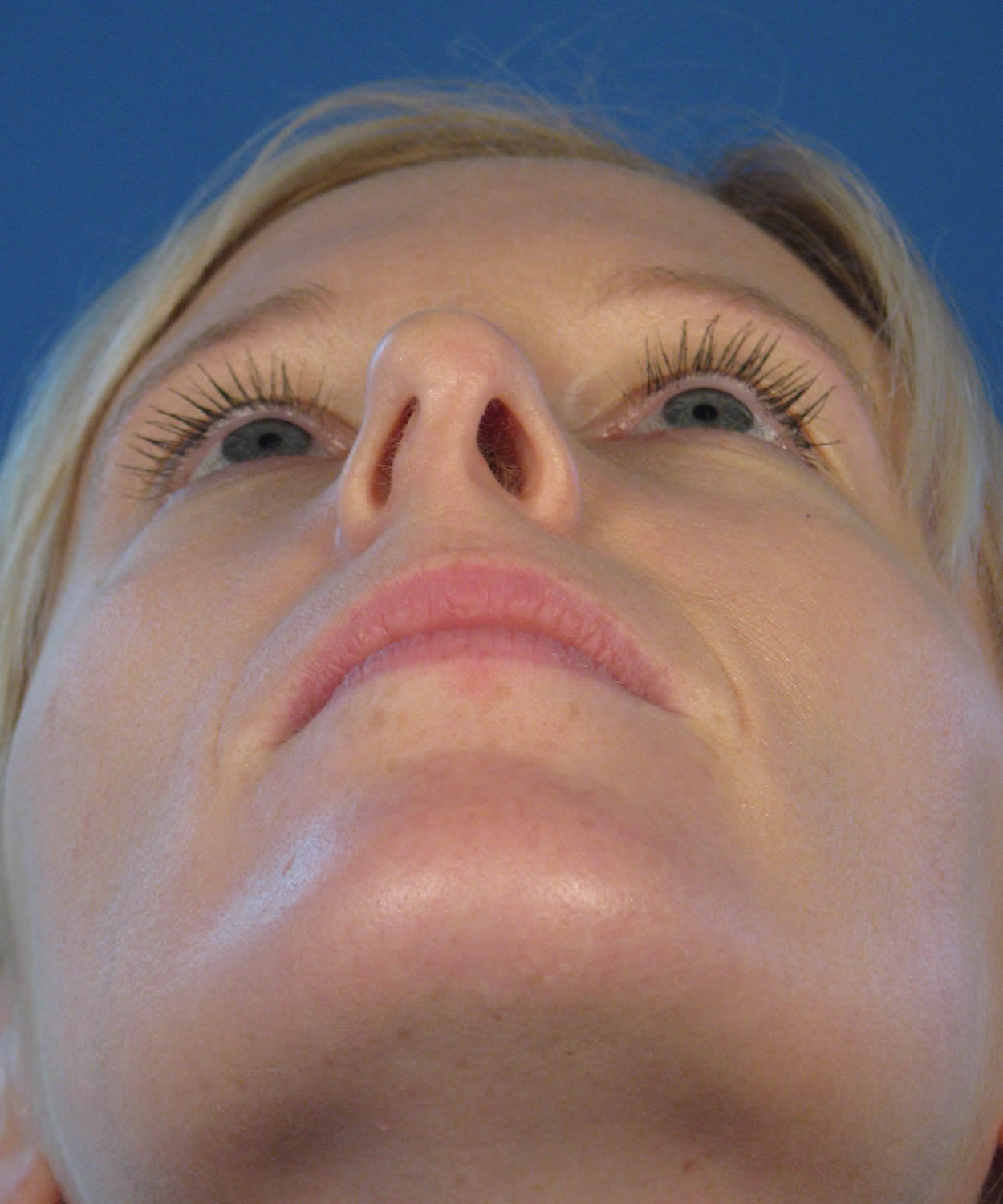 Nostril Asymmetry After Rhinoplasty and Revision Rhinoplasty