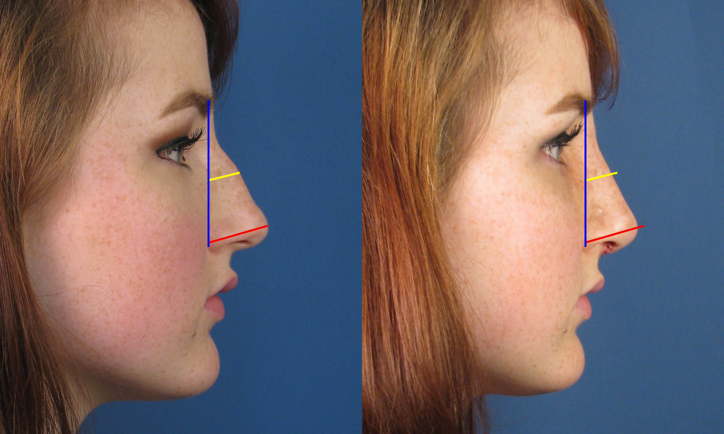 Appearance Less Than One Week After San Diego Nose Job Rhinoplasty