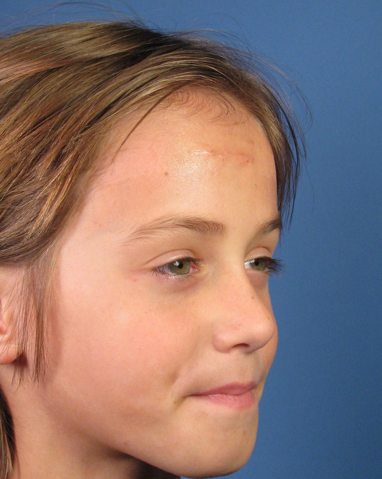 Facial scar healing