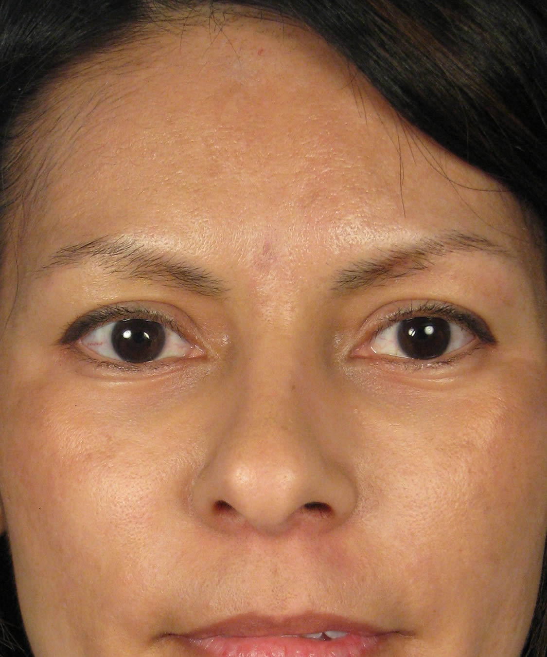 skin pinch lower eyelid lift blepharoplasty by san diego