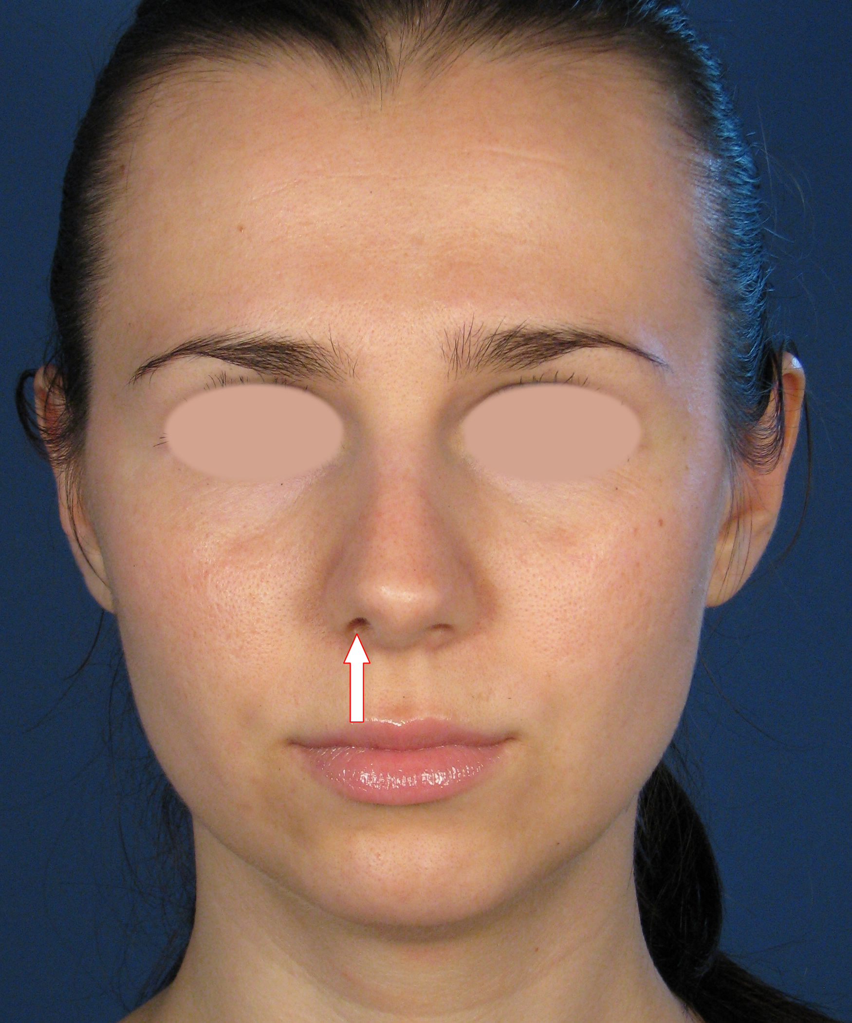 San Diego Plastic Surgery Revision Nose Expert - Example ...