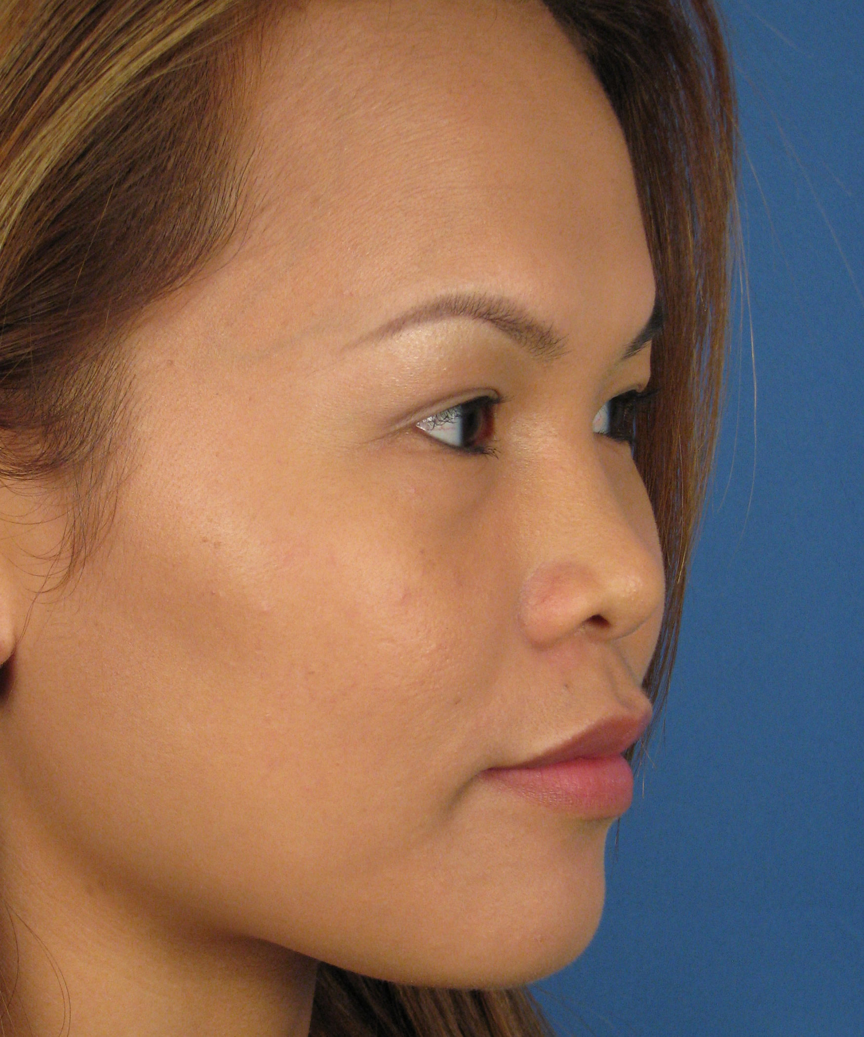 steroid injections for keloids cost