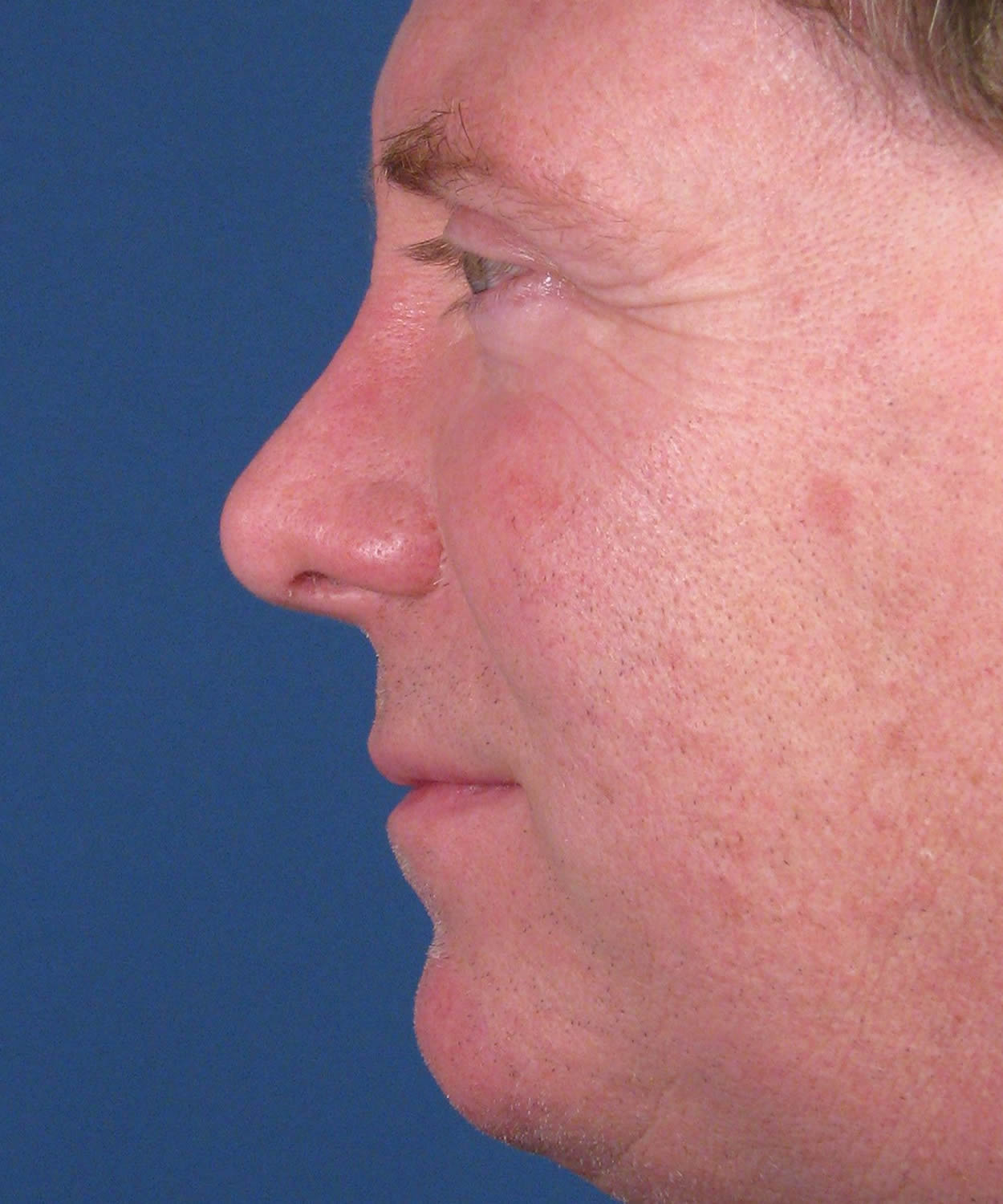 steroid injection nose scar tissue
