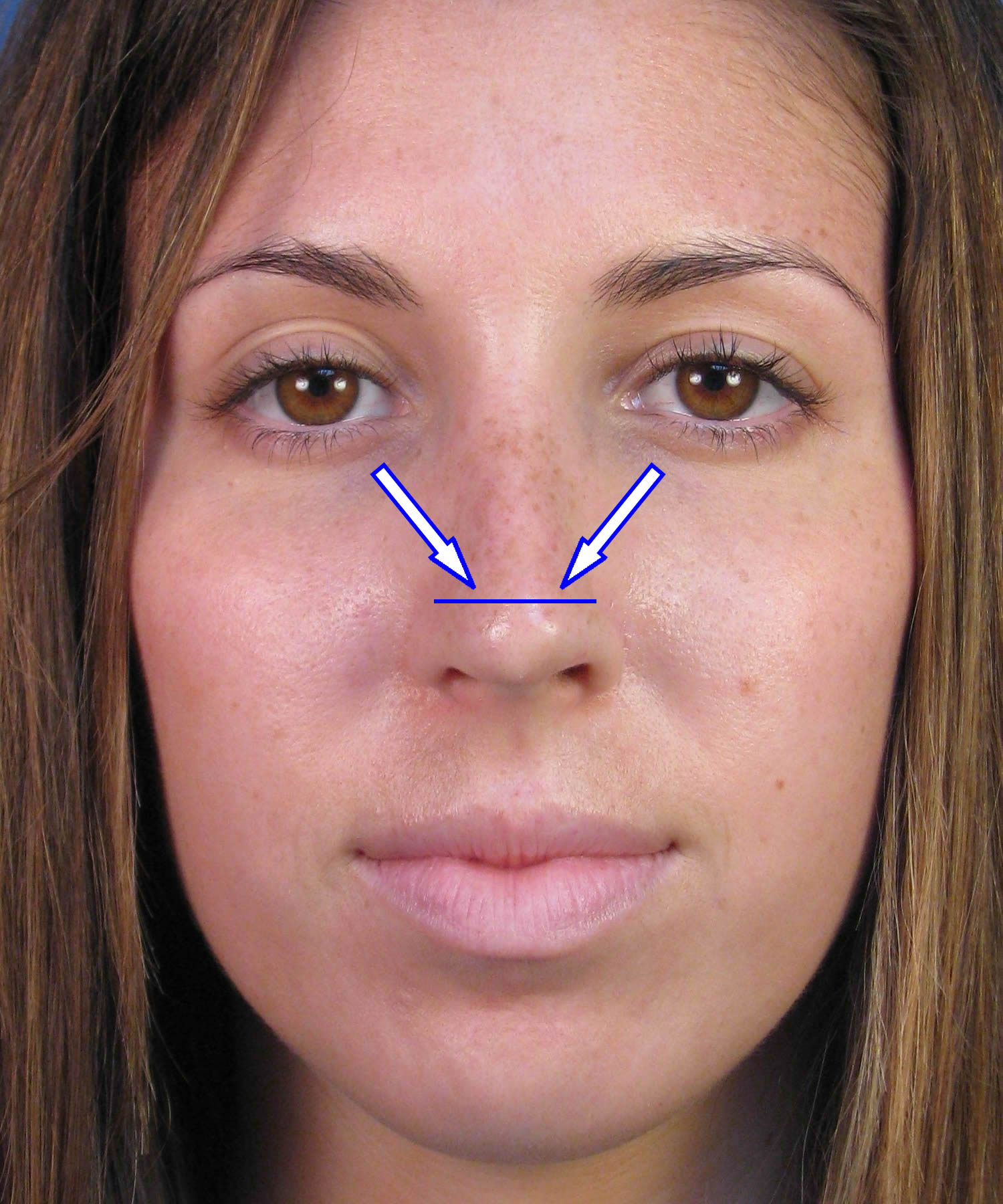 Rhinoplasty in San Diego - Tip Rhinoplasty by Dr. John ...
