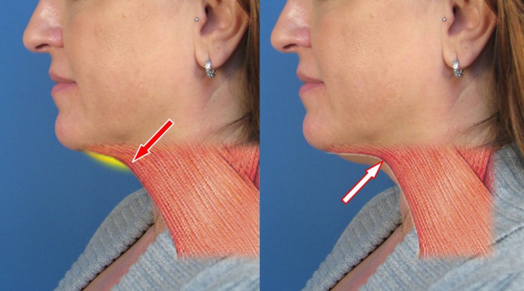 Case Study Of Neck Liposuction Plastysmaplasty In San Diego Ca