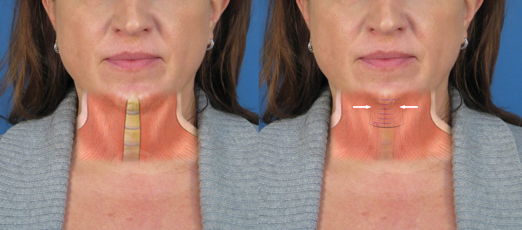 Case study of neck liposuction plastysmaplasty in san diego ca recovery from liposuction platysmaplasty ccuart Images