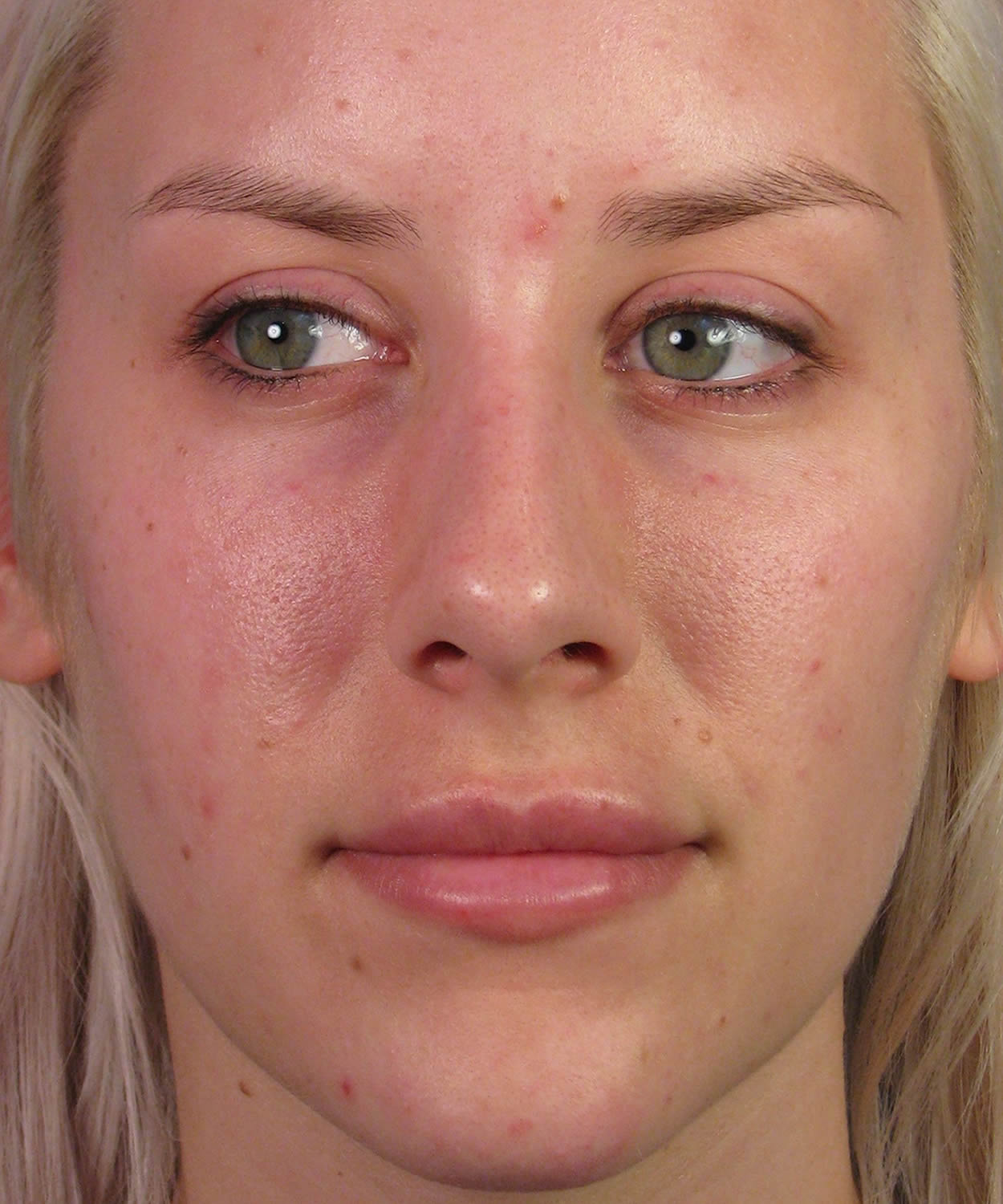 restylane injections under eyes