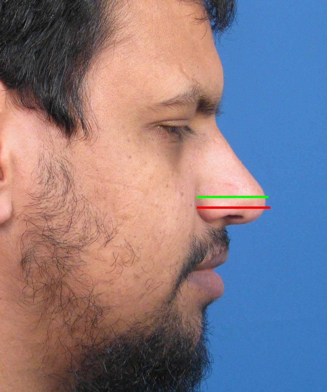 Facial rejuvenation for dummies