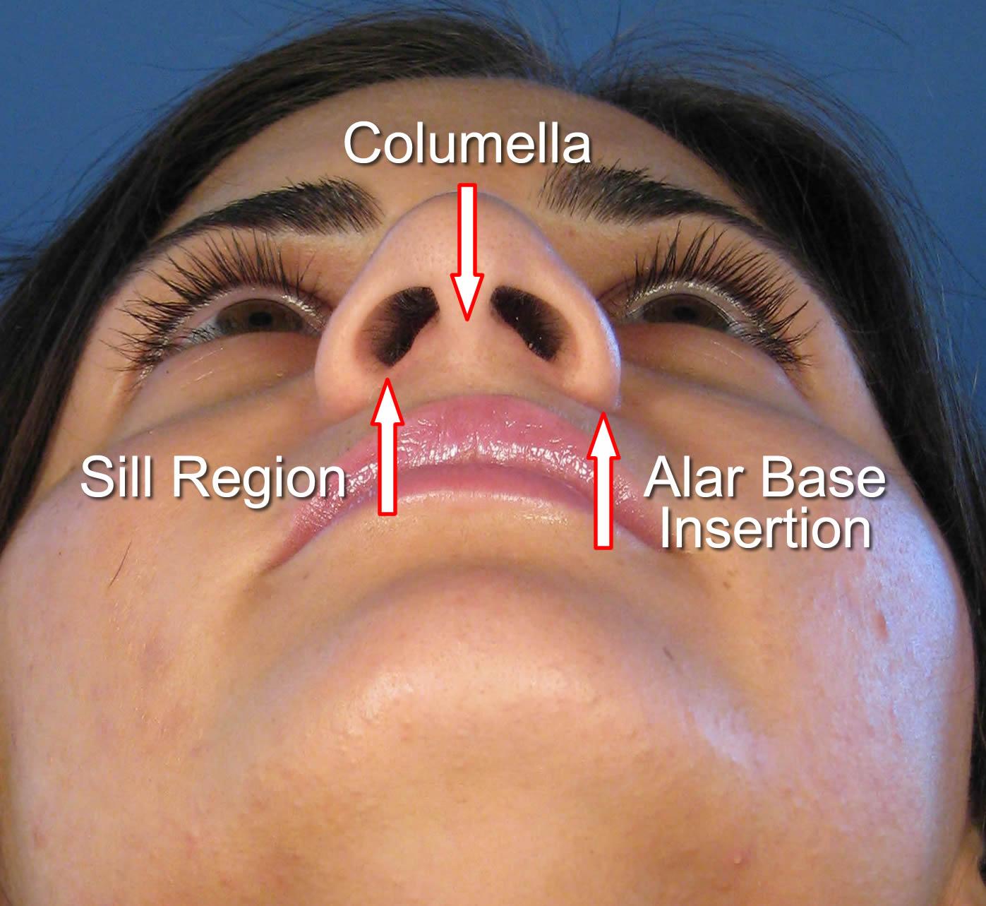 Nasal Base Reduction
