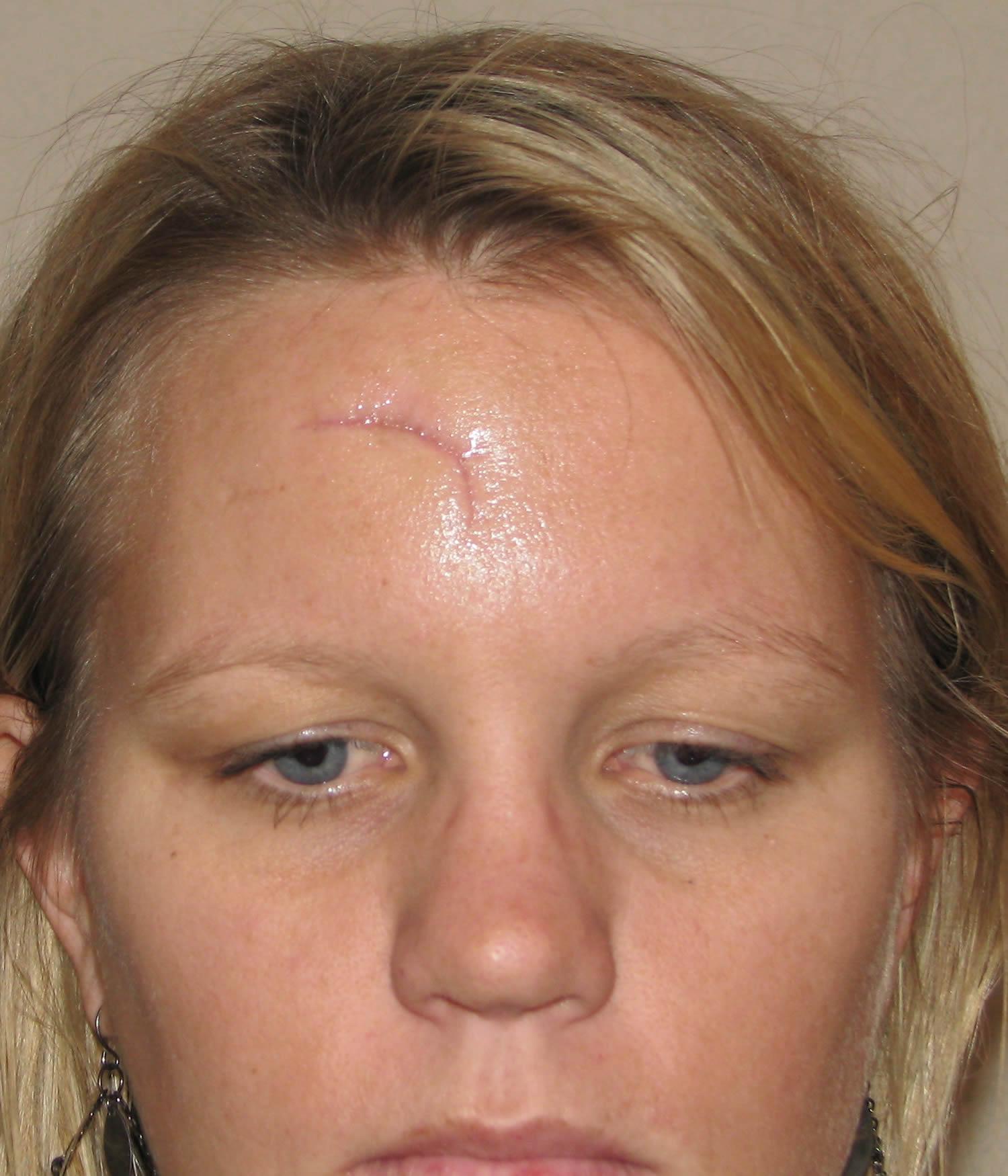 Facial Scar Surgery 71