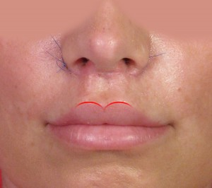 Upper Lip Lift Shortening San Diego CA