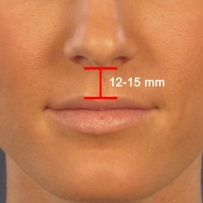 Lip Lift Shortening Surgery