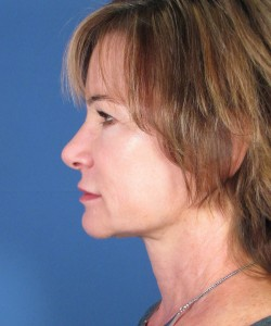 What Is The Difference Between A Facelift And Neck Lift In