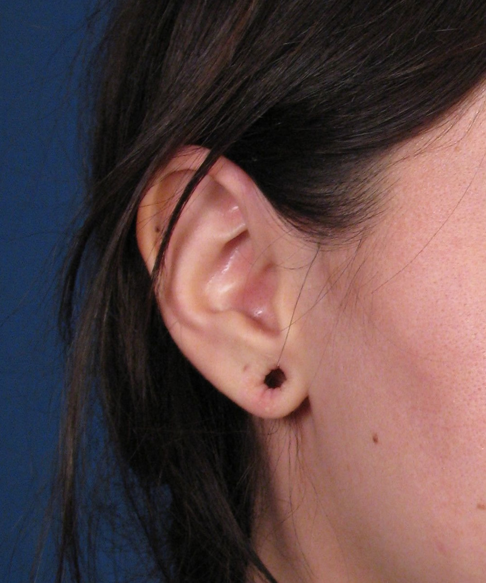 how to close earring holes fast