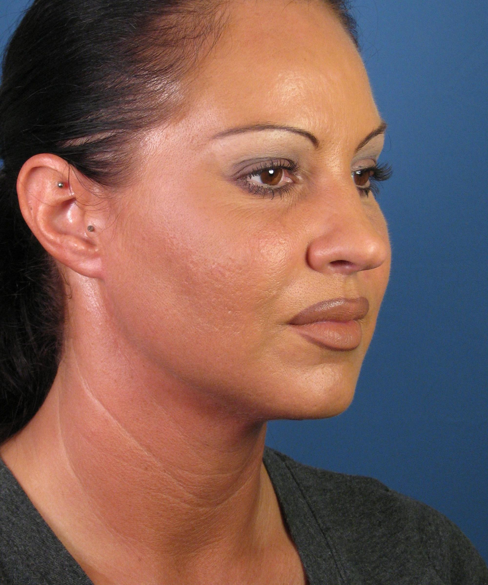 Double Chin Surgery Liposuction In San Diego Ca Dr Hilinski