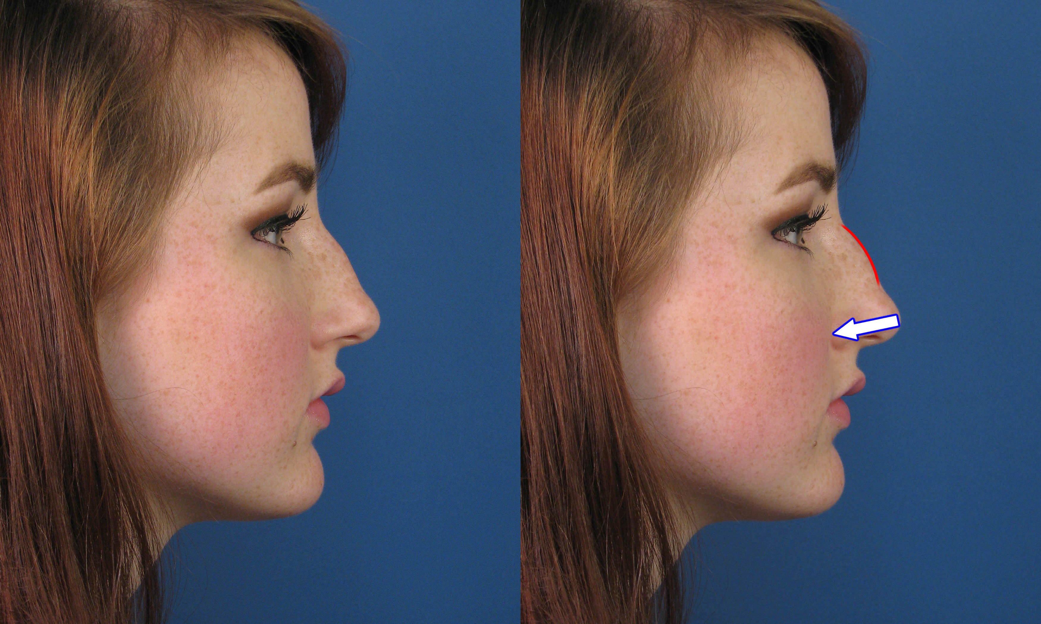 Фото причесок с горбинкой на носу