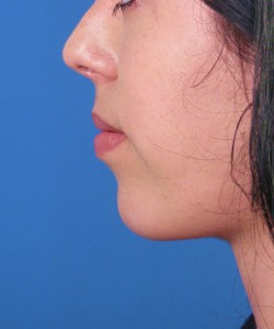 Rise In Chin Augmentation Surgery With Use Of Chin Implants