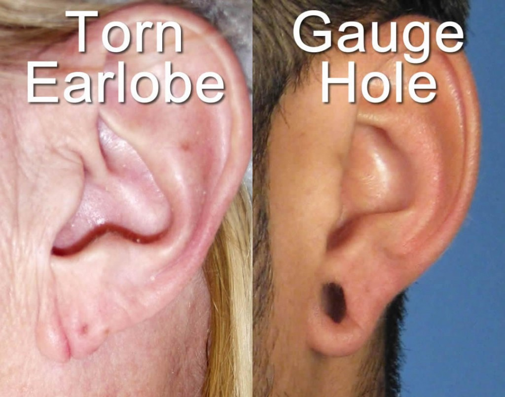 Gauge torn earlobe repair san diego ca regardless pooptronica Choice Image
