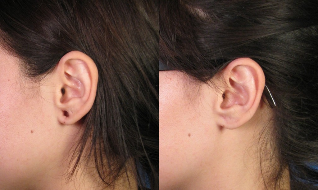 Example 1 Gauge Earring Repair