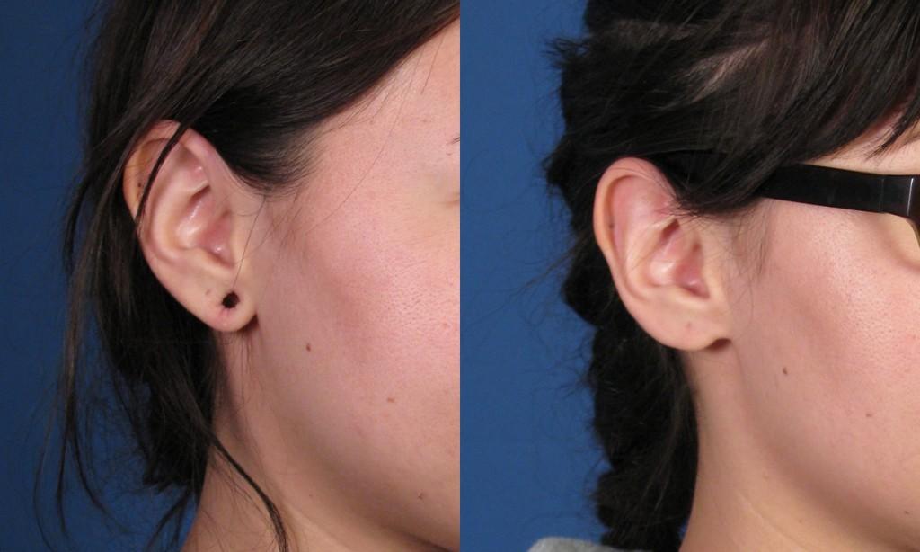 Example 2 Gauge Earring Repair
