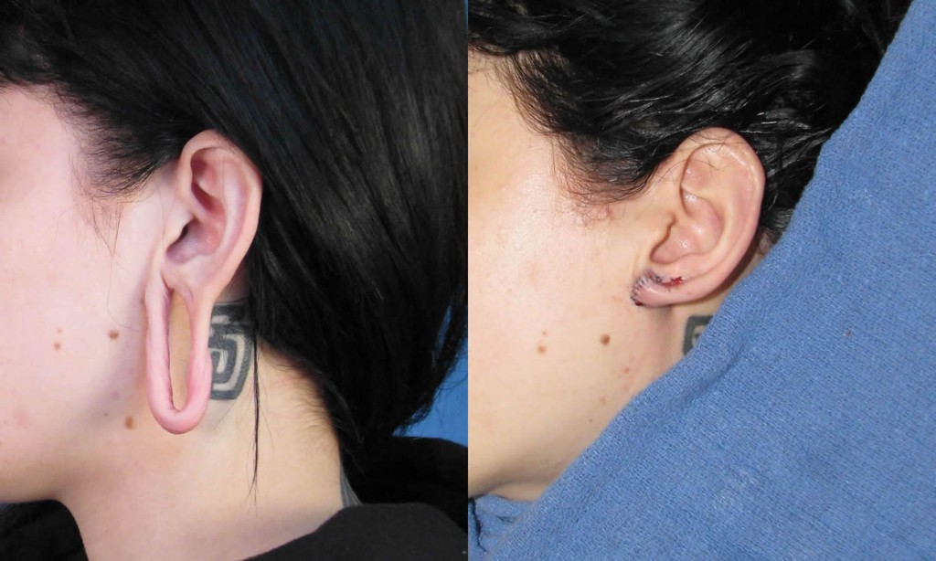Example 2 Gauge Earring Repair