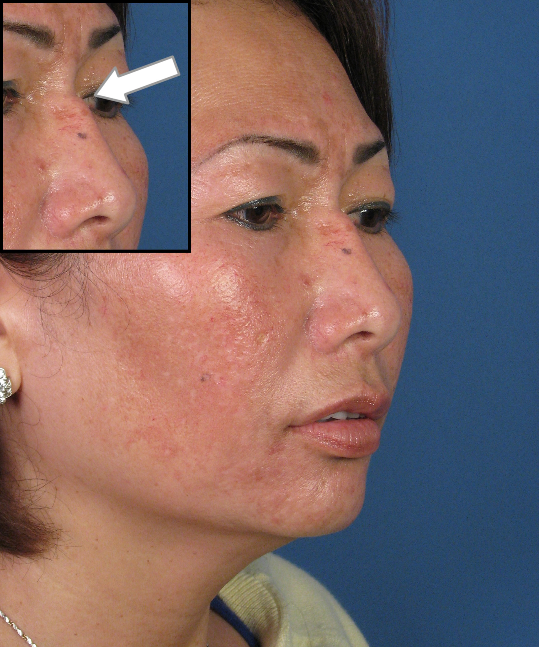 Rhinoplasty Before And After Asian Rhinoplasty Sili...
