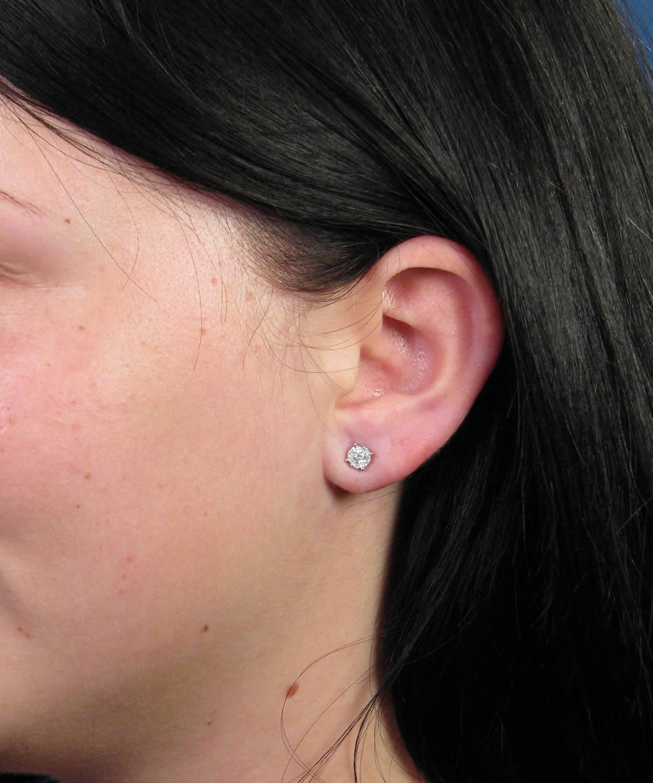 Stretched Earlobe Repair Surgery Following Gauge Earring