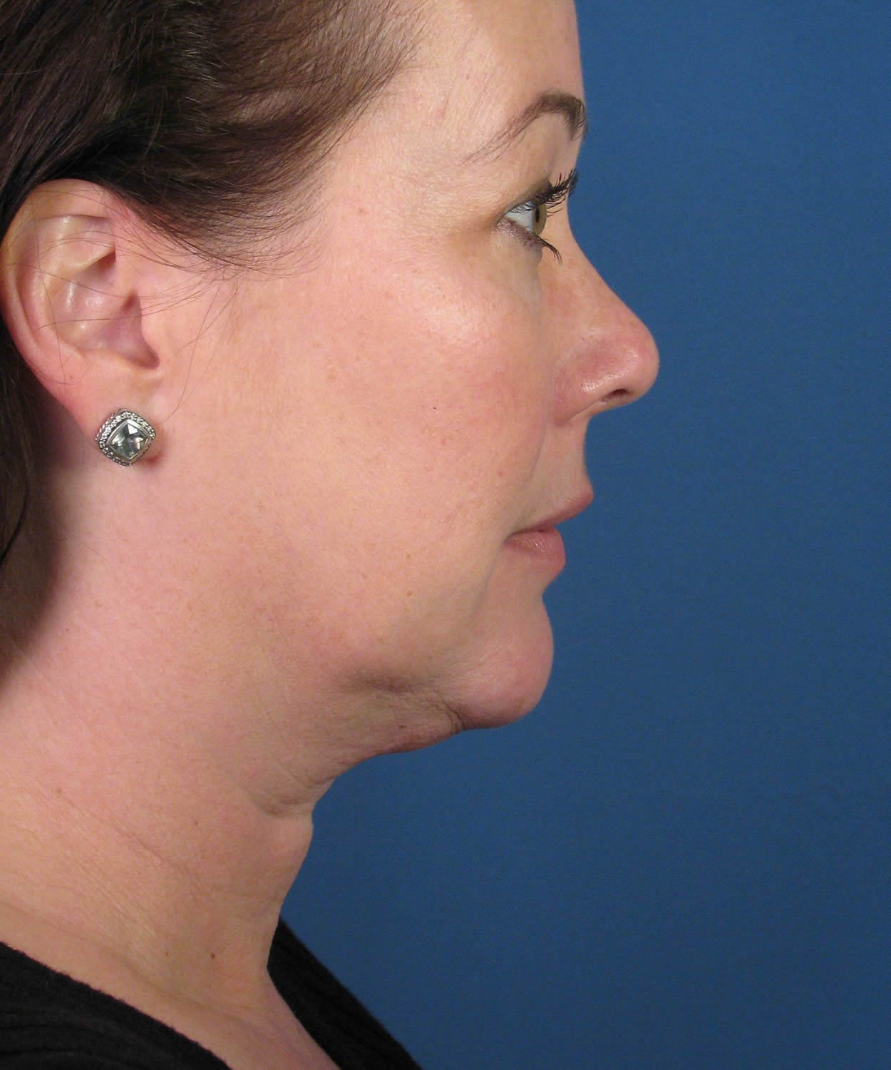 Before and After Neck Liposuction & Platysmaplasty