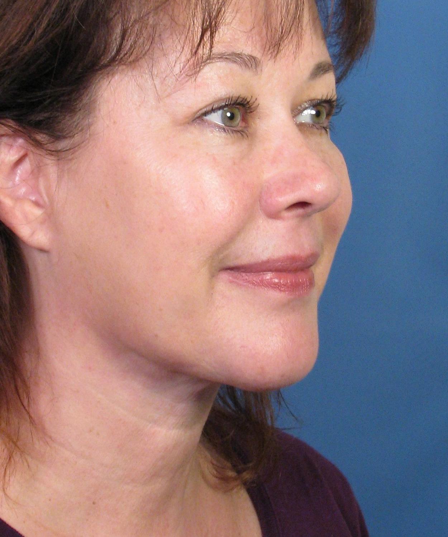 cervical facial rhytidectomy