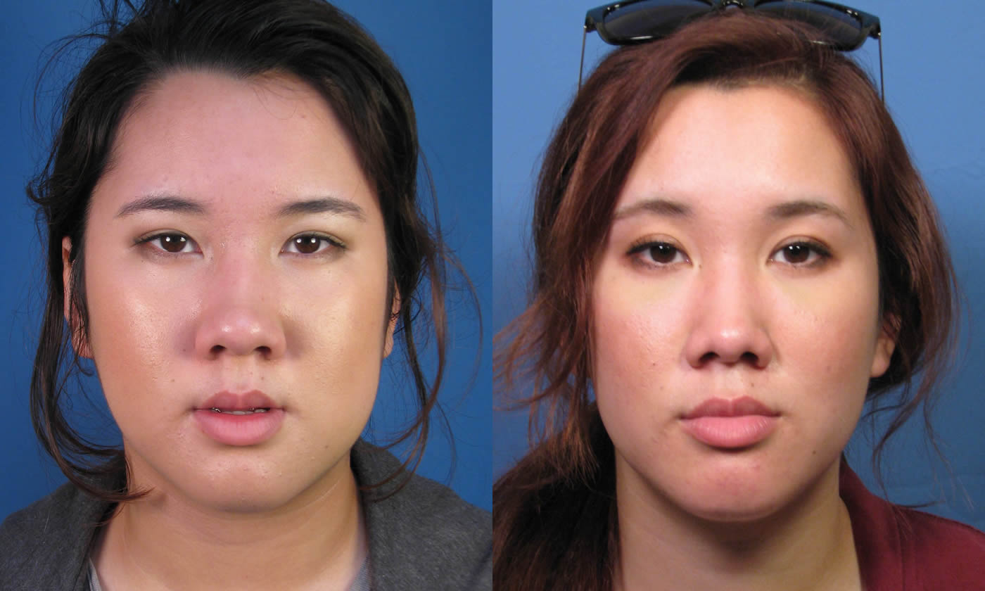 Rhinoplasty In The Asian Patient Cosmetic Nose Surgery