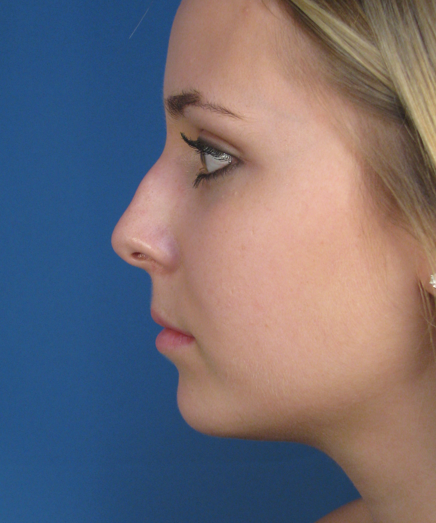 Finesse Female Rhinoplasty