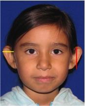 ear surgery, otoplasty, ear pinning