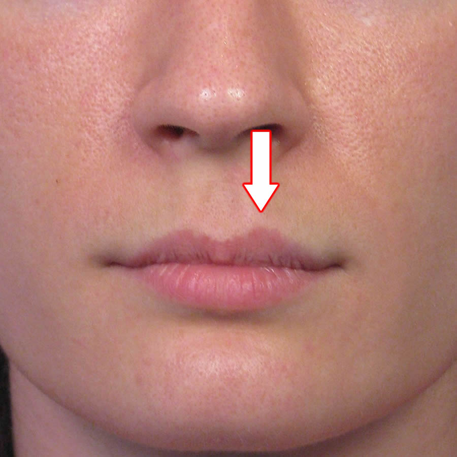 Subnasale Upper Lip Lift Case Example 2 by Dr. John ...