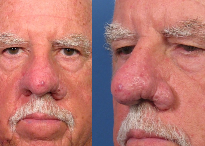 Rhinophyma - Pictures, Treatment, Surgery, Causes