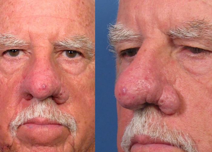 Rhinophyma treatment