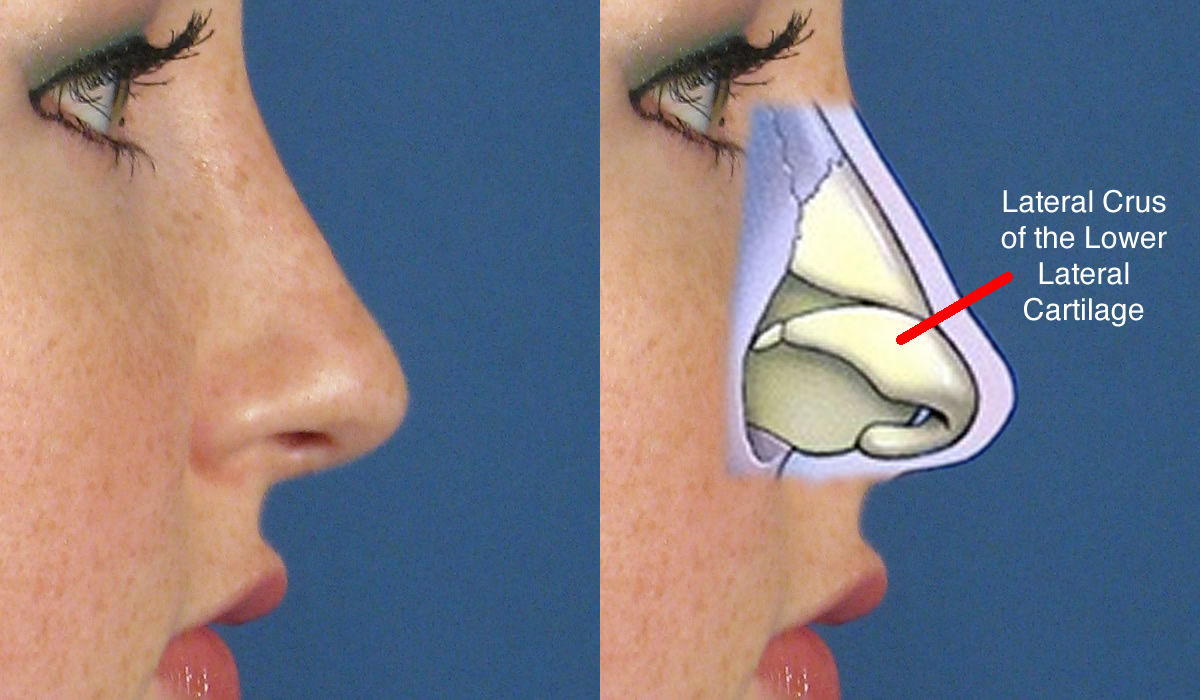 Composite ear grafts to the nose diagramnormallabeled pooptronica Choice Image