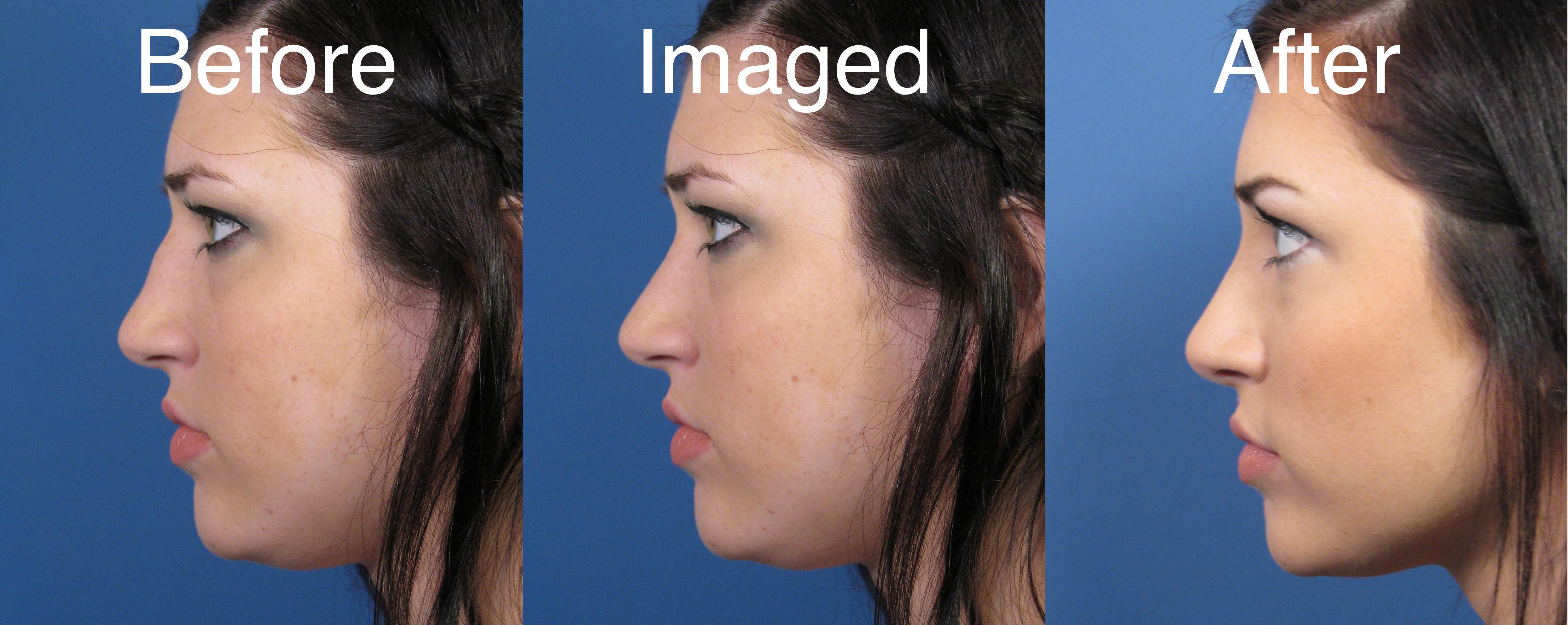Rhinoplasty Transformation