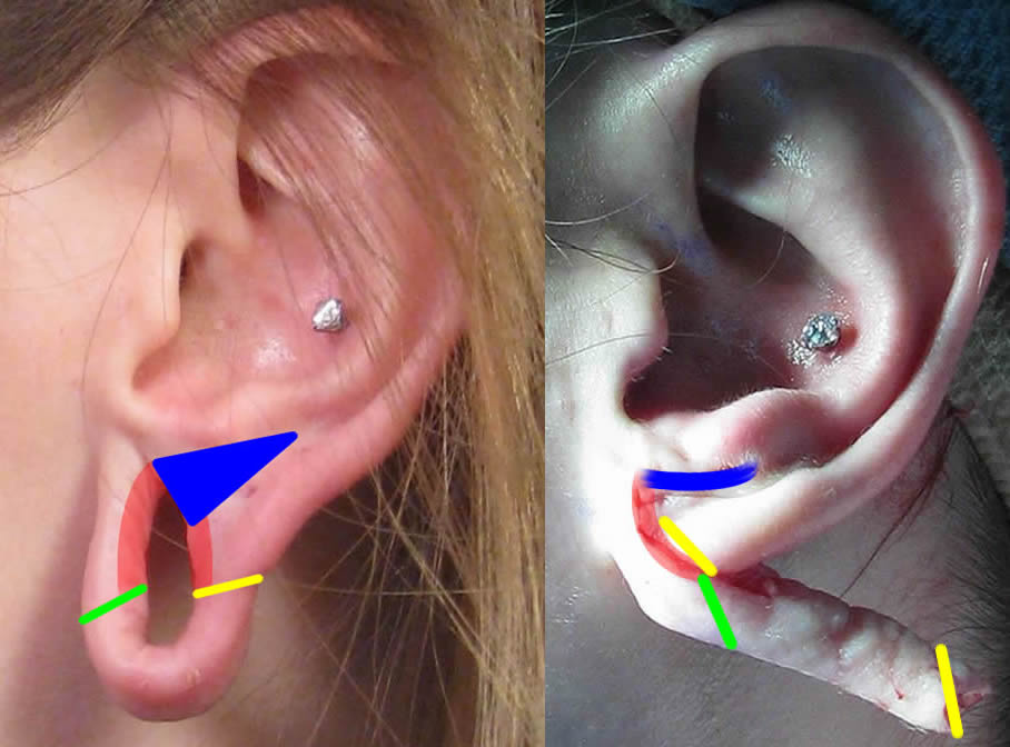 Large Gauge Earring Repair Correction