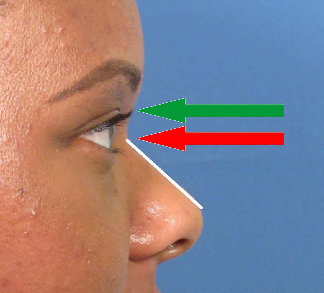 African-American Nose Job
