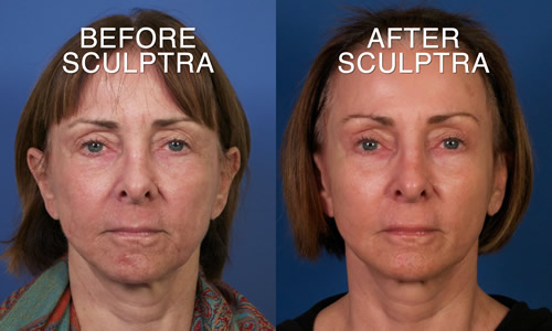 Sculptra3FrontalBeforeAfterFB